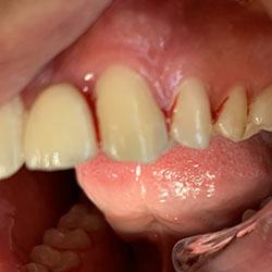 PAROTEST test bactérien pré-implantaire